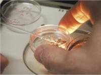 Γονιμοποίηση ωαρίων με την τεχνική IVF