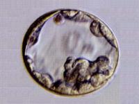 Έμβρυα Βλαστοκύστεων