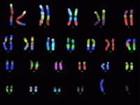Κυτταρογενετική ανάλυση ή Καρυότυπος